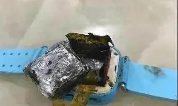 电话手表自燃,4岁女童被严重烧伤!调查:多数学校禁止电话手表进校园